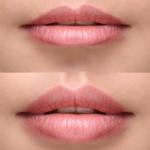 Lip filler Dublin Happy Woman Clinic