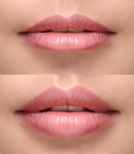 Lip filler Dublin Happy Woman Clinic