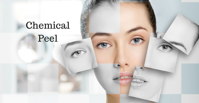 Chemical Peel Happy Woman Clinic Dublin