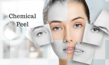 Chemical Peel Happy Woman Clinic Dublin