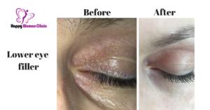 lower eye filler slide