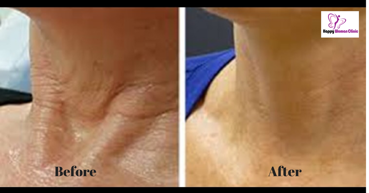 Non surgical neck lift Dublin