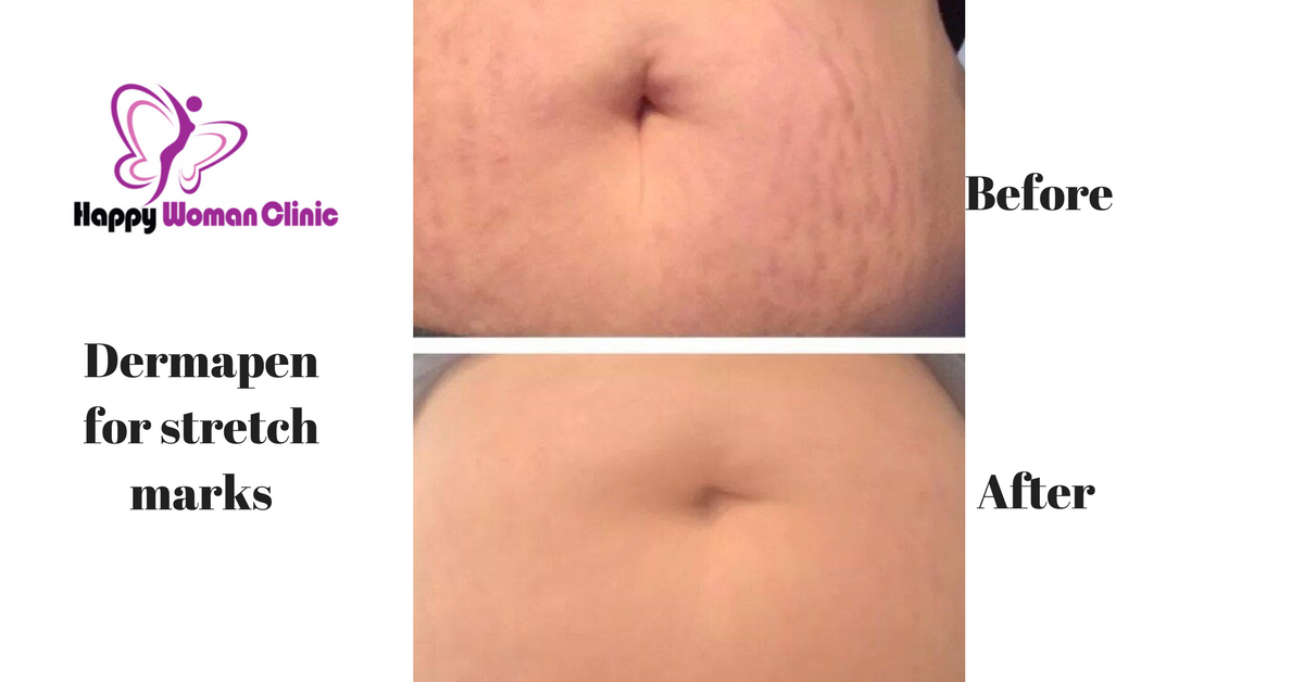 Dermapen Stretch mark removal happy woman clinic dublin